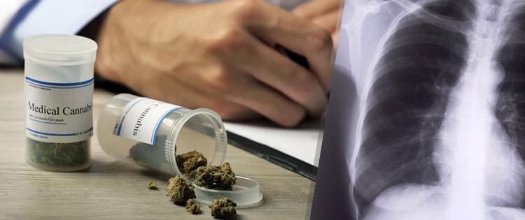 Cannabis: The Hidden Cure for Bone Disease
