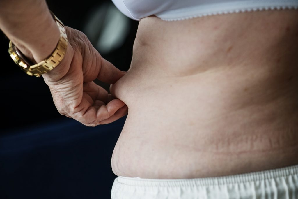obese overweight woman